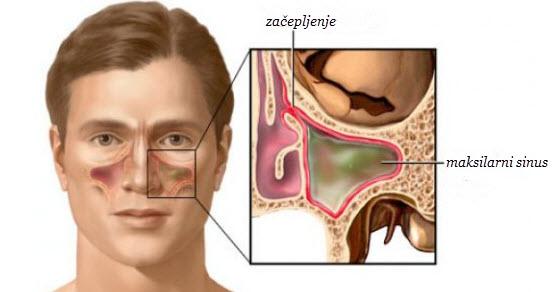 Upala sinusa simptomi i lečenje prirodnim putem