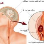 Moždani udar simptomi i oporavak