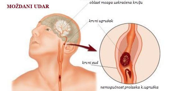 simptomi moždanog udara