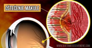 makula-oštećena
