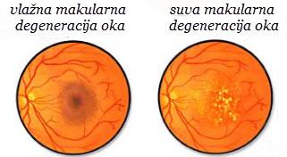 makularna degeneracija oka simptomi oboljenja