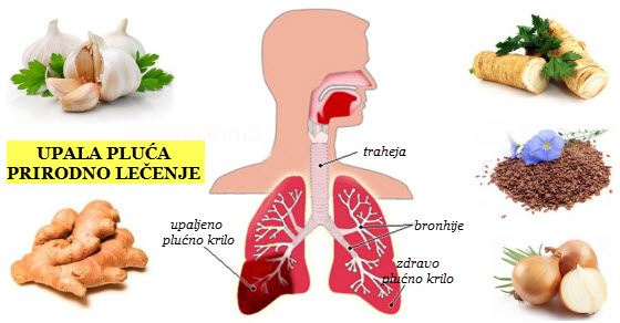 simptomi upale pluća bez temperature