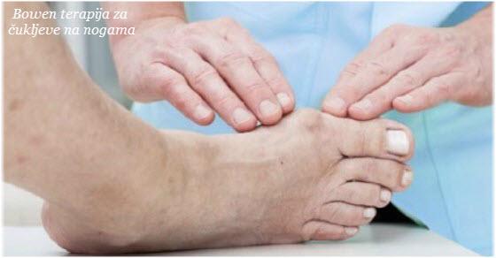 čukljevi na nogama lečenje