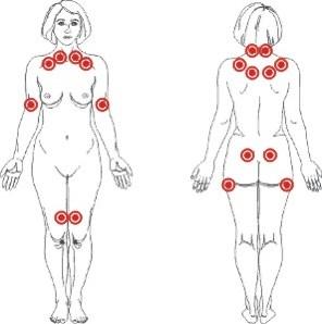 fibromialgija simptomi bolesti