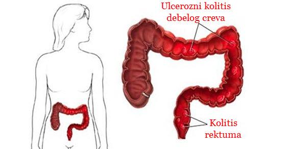 simptomi ulceroznog kolitisa