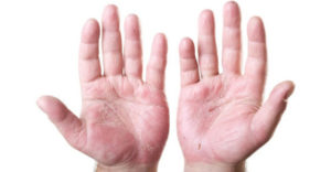 atopijski dermatitis slike