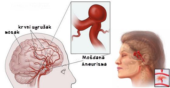 Aneurizma mozga simptomi i lečenje