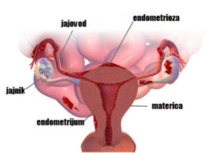 endometrioza jajnika