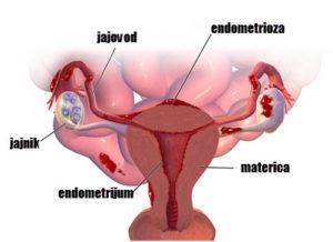 endometrioza jajnika