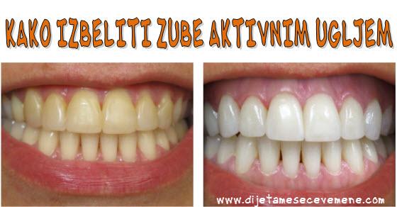 Aktivni ugalj upotreba za zube i lice