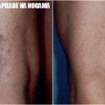 Popucali kapilari na nogama prirodno lečenje
