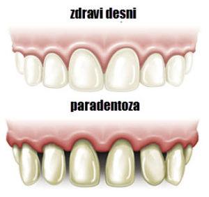 paradentoza zuba simptomi u ranoj fazi