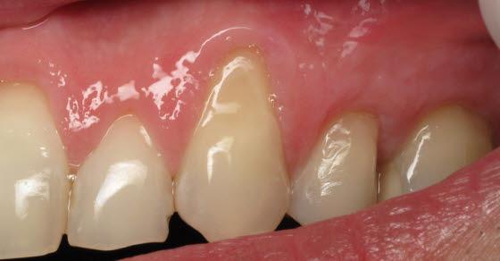 Paradentoza zuba simptomi i prirodno lečenje