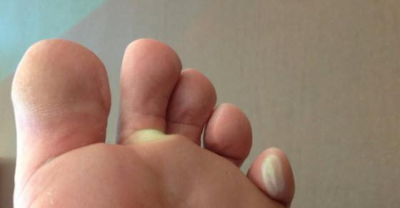 Plikovi na stopalima i tabanima prirodno lečenje