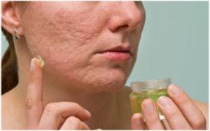 ožiljci od akni uklanjanje prirodno