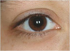 očni pritisak simptomi kod mladih ljudi