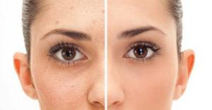 uklanjanje ožiljaka od akni sa lica