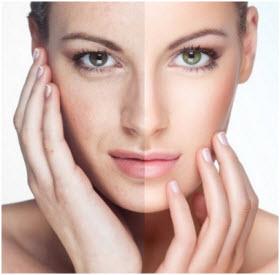 aktivni kiseonik za lice u spreju