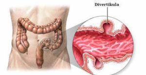 divertikularna bolest debelog creva