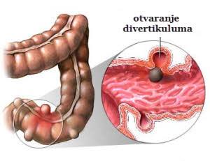 divertikuloza kolona debelog creva