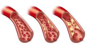 povišeni trigliceridi u krvi simptomi