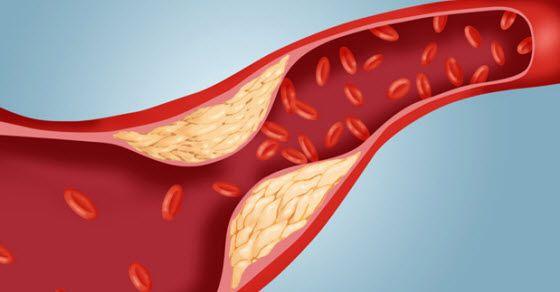 Povišeni trigliceridi u krvi simptomi i lečenje