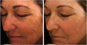 kako podmladiti lice mezoterapijom