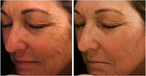 Mezoterapija lica bez igle za podmlađivanje kože
