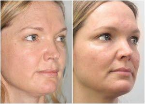mezoterapija lica bez igle