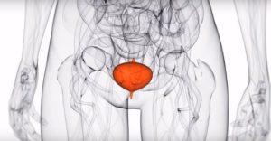 kako-smanjiti-leukocite-u-urinu