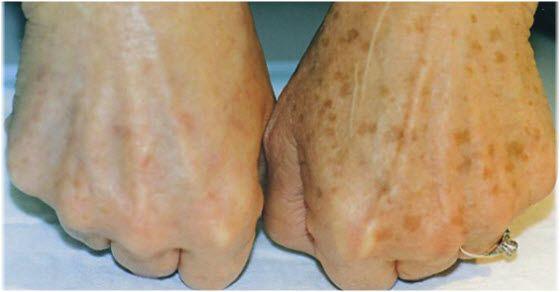 hiperpigmentacija kože na rukama