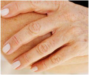staračke pege po rukama