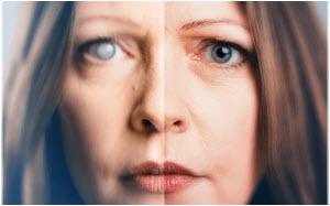 katarakta oka simptomi