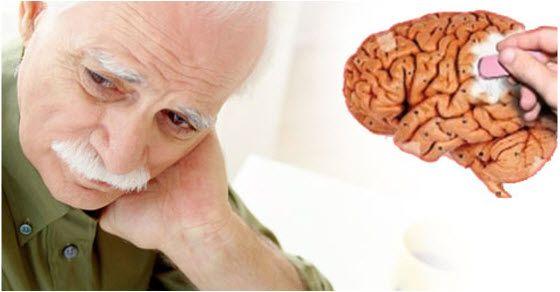 Šta je Alchajmerova bolest i kako se leči