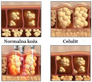 ultrazvučna kavitacija postupak primene