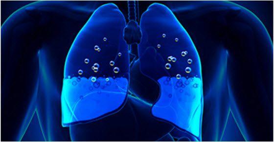 Voda u plućima simptomi i prirodno lečenje