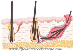 pilonidalni sinus simptomi oboljenja