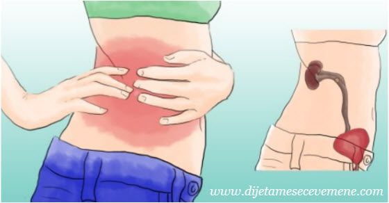 Upala bubrega simptomi i prirodno lečenje