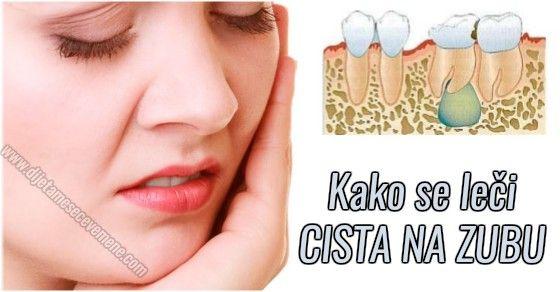 Cista na zubu simptomi i prirodno lečenje