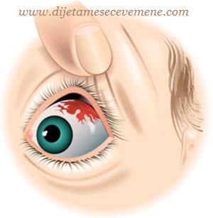 Pucanje kapilara u oku uzrok i lečenje