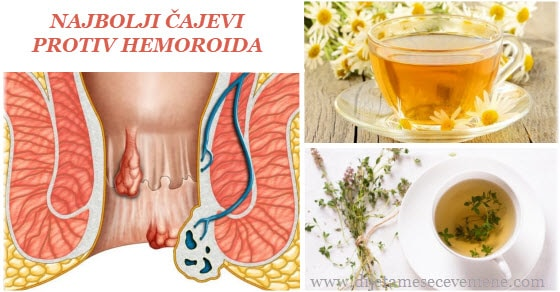 Koji je najbolji čaj za hemoroide