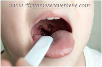 treći krajnik simptomi kod dece