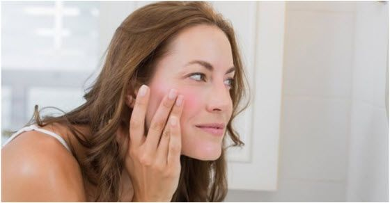 kuperoza lica prvi simptomi