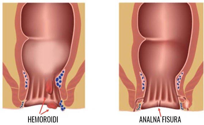Analna fisura i hemoroidi glavne razlike