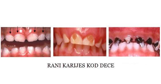 pokvareni zubi kod dece